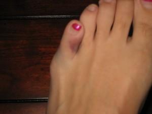 Mom's poor toe:(